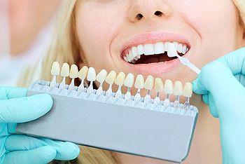blanqueamiento dental implantes dentales clinica dental caparroso navarra