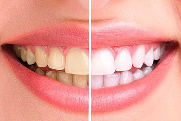 Todo lo que tienes que saber sobre el Blanqueamiento Dental