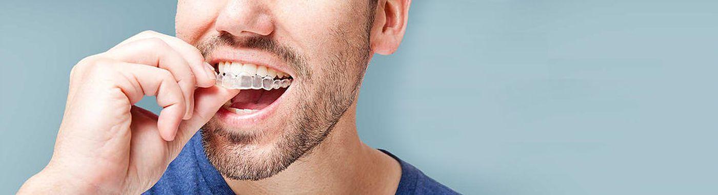 ventajas ortodoncia invisible implantes dentales