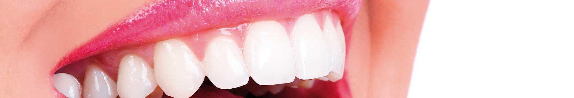 tratamientos dentales clinica dental caparroso macrident navarra