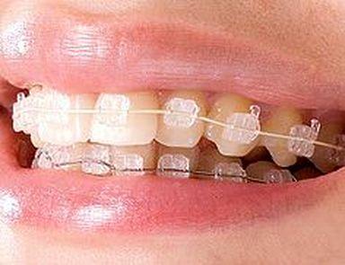 implantes dentales caparroso navarra